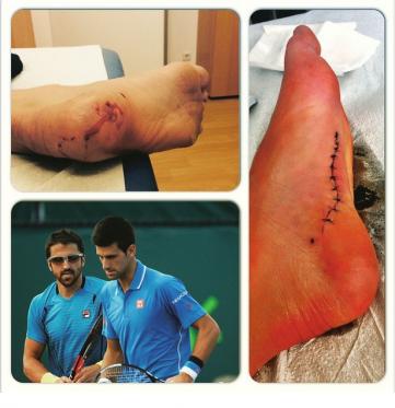 Jankova povreda i povratak na teren