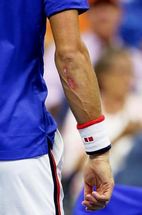Povreda ruke